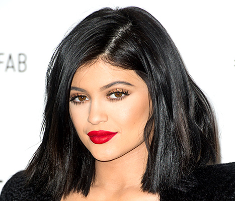 kylie-jenner-red-lips-inline-lip-injections-toronto